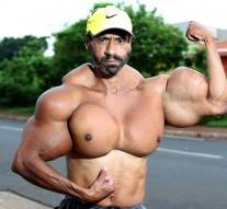 Il s'injecte de l'huile dans les muscles pour ressembler à Arnold Schwarzenegger