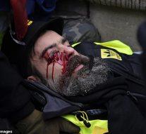 Le chef de la manifestation, gilet jaune, est plongé dans le coma après avoir été touché par un projectile de la police lors d'une attaque