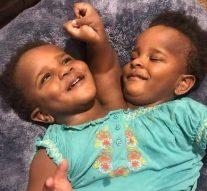 Un corps, deux sœurs. Quel avenir pour ces jumelles siamoises