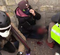 La main d'un gilet jaune déchirée dans de terribles scènes de violence entre la police et des manifestants à Paris