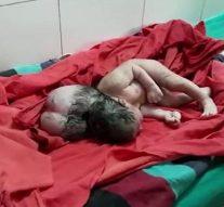 Un bébé est né avec trois têtes en Inde