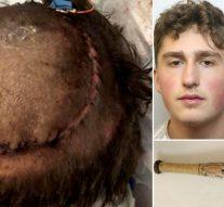 Un adolescent a laissé un garçon de 16 ans handicapé après l'avoir attaqué avec une batte de baseball de style Walking Dead