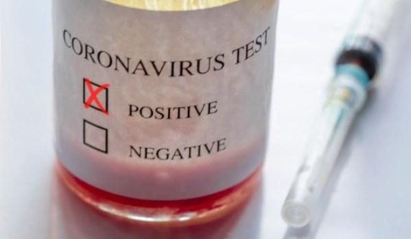 Plus d'un demi-million de personnes infectées par le coronavirus dans le monde et plus de 15 000 personnes sont décédées rien qu'en Europe