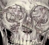 Miracle médical à Jérusalem: la chirurgie sauve un homme avec une barre de fer dans la tête