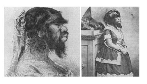 La vie triste et grotesque de Julia Pastrana, la «femme singe»